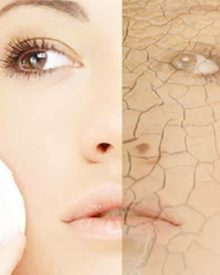 Best 3 Humidifiers for Dry Skin